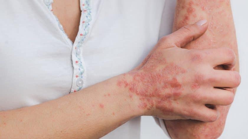 Les astuces à adopter pour protéger sa peau à psoriasis